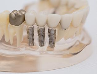 3D 人工植牙